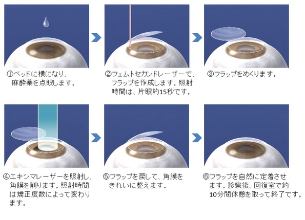 視力回復 レーシック ICL