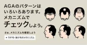 毛が抜ける 薄毛 AGA